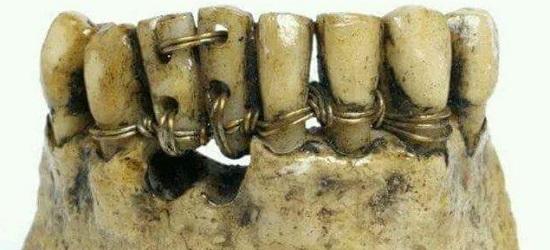история имплантации зубов
