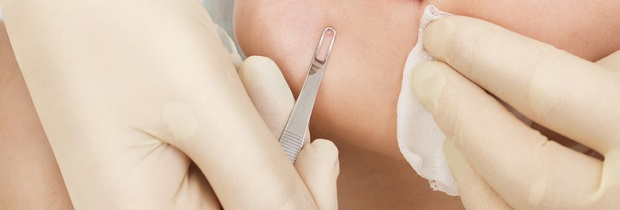 дерматит кожи лечение