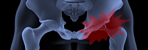 материалы эндопротезирования тазобедренного сустава