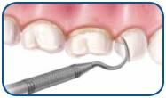 зубное лечение