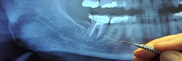 Пломбирование каналов зубов