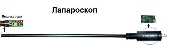 принцип лапароскопии