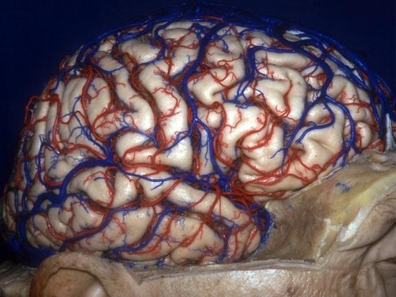 выглядит мозг