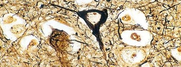 бета амилоидные белки