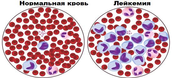 Острая лимфатическая лейкемия