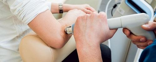 процедура ударно волновой терапии