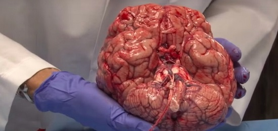 что такое мозг