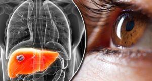 какие виды гепатита бывают