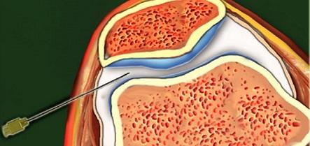 пункции сустава