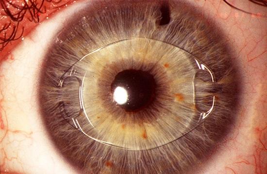 глазные болезни