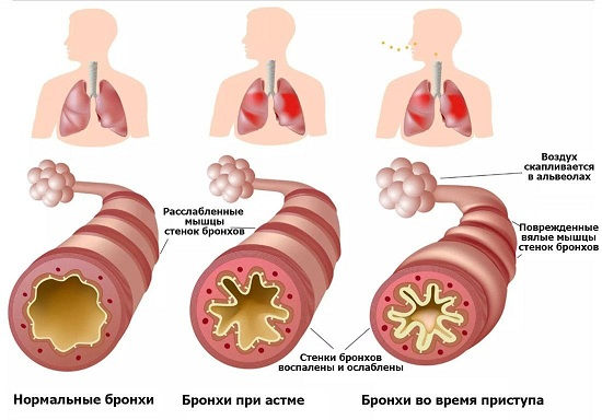 Развитие бронхиальной астмы