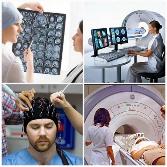 эпилепсия как лечить